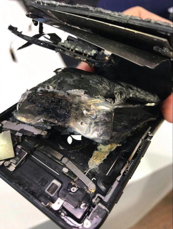 iPhone 7 избухва и нанася тежки поражения на ръката на 42-годишен мъж (снимки) 4